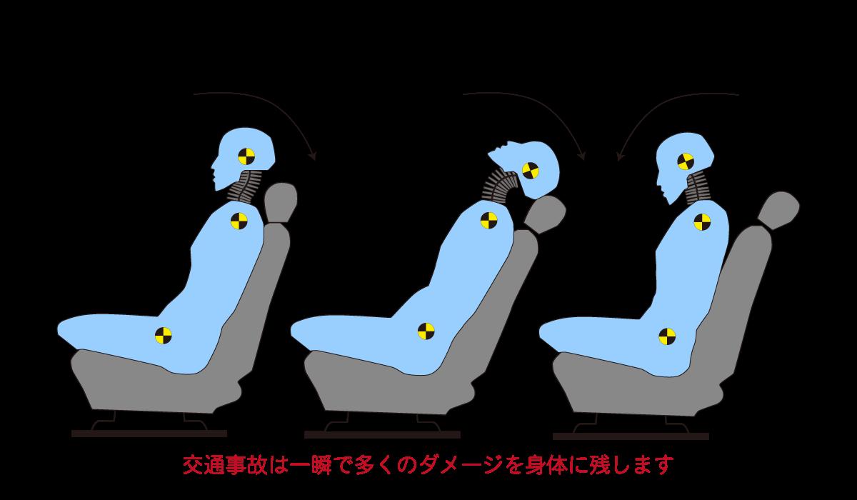 自動車事故(追突)における「頸椎捻挫(むちうち)」発生経過図